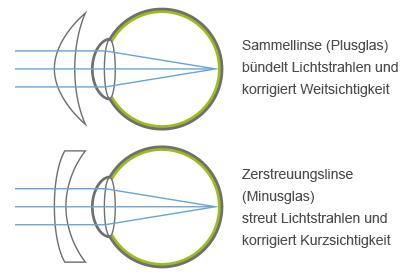 Infografik Unterschied Plus- und Minusglas