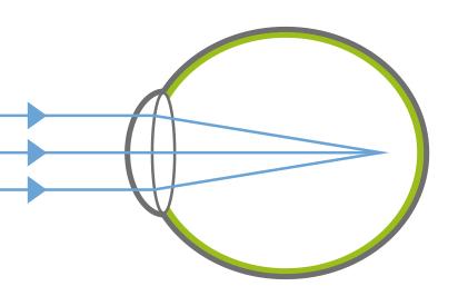Myopie - kurzsichtiges Auge