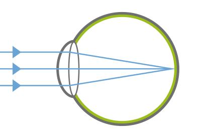 Myopie - normales Auge